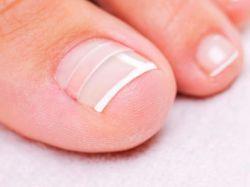 Вросший ноготь на ноге: лечение. Удаление вросшего ногтя