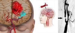 Ишемия головного мозга: причины, симптомы и лечение. Хроническая ишемия головного мозга