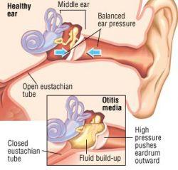 Отит среднего уха: лечение каплями, антибиотиками. Отит среднего уха: хронический, катаральный, острый, гнойный