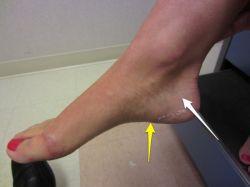 Перелом пяточной кости со смещением и без смещения. Период реабилитации при переломе пяточной кости