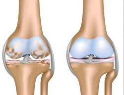 лечение остеоартроз плечевого сустава народными средствами