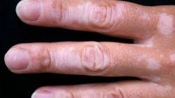 Белые пятна на руках: причины. Как избавиться от пигментных пятен