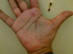Красные пятна на руках: симптомы и лечение. Красные пятна на руках ребенка
