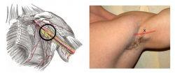 Увеличенные лимфоузлы под мышкой: причины, лечение