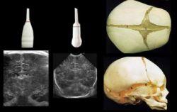 УЗИ головного мозга новорожденного: норма. УЗИ головного мозга новорожденного: расшифровка