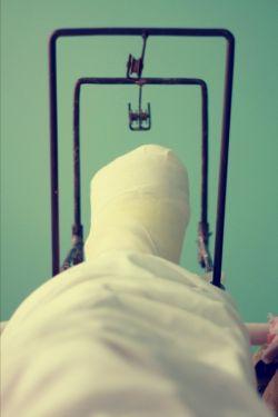 Перелом ноги: методы лечения. Реабилитация после перелома ноги