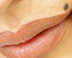 Какую угрозу несет в себе уплотнение под кожей?