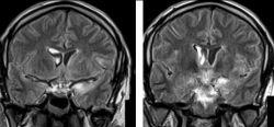 Диэнцефальный синдром: причины, симптомы, методы диагностики