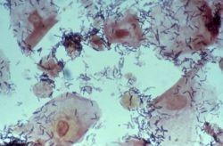 Ключевые клетки в мазке: о чем они говорят