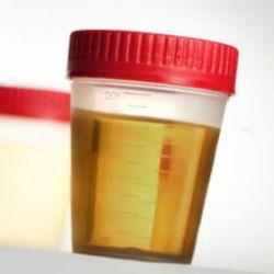 Лечение биорезонансным методом