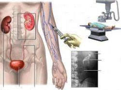 Внутривенная урография: подготовка, проведение, противопоказания