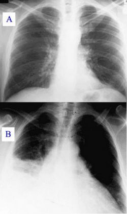 Рентгенография грудной клетки: заключение. Обзорная рентгенография органов грудной клетки