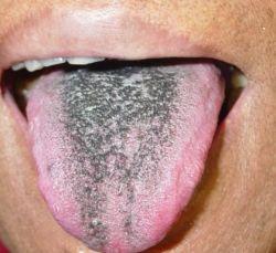Черный налет на языке не повод для паники