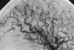 Спазм сосудов головного мозга: причины, основные симптомы и способы лечения