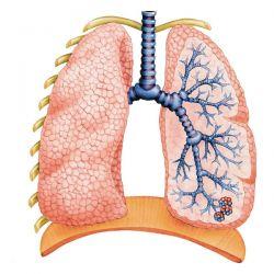 Затемнение в легких как синдром поражения легочной ткани