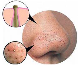 Идеальная кожа или как избавиться от черных точек на носу