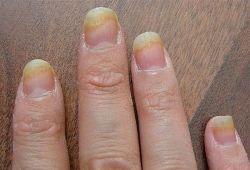 Грибок на пальцах рук: причины, симптомы, лечение