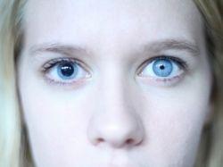 Анизокория, или разного размера зрачки