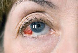Капилляр в глазу лопнул: причины и лечение