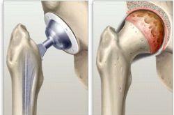 Замена тазобедренных суставов. Стоимость операции, сроки восстановления