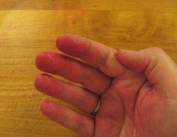Болезнь Лане: красные пятна на ладонях