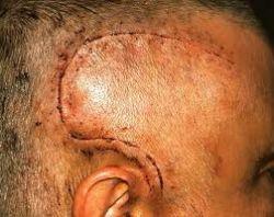 Сложные операции: последствия трепанации черепа