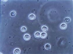 Бактерии в моче при беременности – насколько это опасно