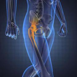 Тазобедренный сустав: замена и дальнейшая реабилитация