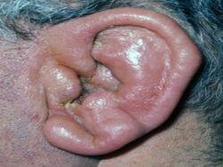 Если ушная раковина болит, то в этом виноват отит