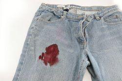 Как отстирать кровь? Советы домохозяек